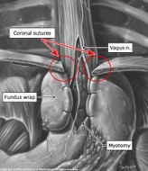 heller myotomy atlanta