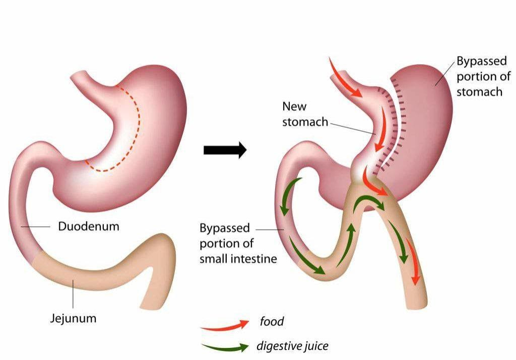 mini gastric bypass atlanta