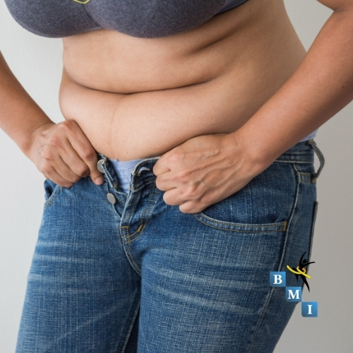 what is the best revision surgery for gastric bypass
