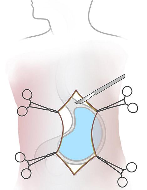 tif procedure atlanta